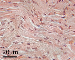 photo of cardiac muscle