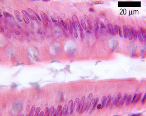 photo of goblet cells PAS stain